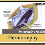 Herniorraphy Surgical Procedure