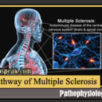 Multiple Sclerosis Pathophysiology