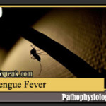 Dengue (Dengue Hemorrhagic Fever) Pathophysiology & Schematic Diagram