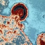 Cancer & AIDS - The Concept of Immunosurveillance