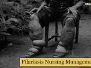 Filariasis-Nursing-Management