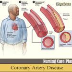 Nursing Care Plan for Coronary Artery Disease