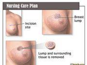 nursing-care-plan-breast-cancer
