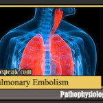 Pulmonary Embolism Pathophysiology and Schematic Diagram