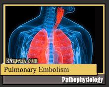 pulmonary-embolism-pathophysiology