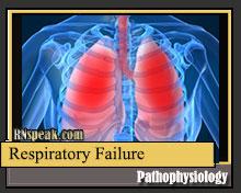 respiratory-failure