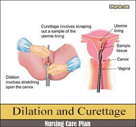 dilation-and-curettage-nursing-care-plan