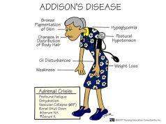 addisons-disease-nursing-management