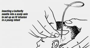 scalp-vein-infusion-insertion for pediatric