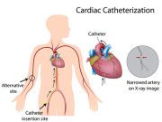 cardiaccatheterization-pre-and-post-operation-care-patient