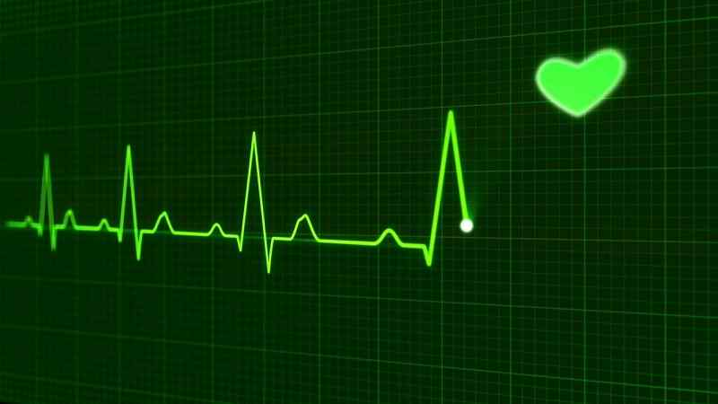 heartbeat monitoring